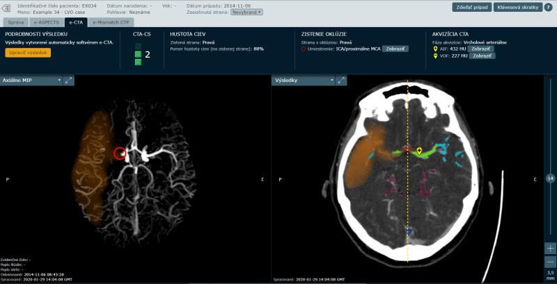 Vcasna endovaskularna liecba pre obnovenie mozgových funkcii po mozgovej prihode