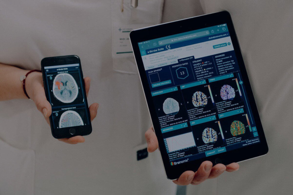 Neurovaskularny program Nemocnica Bory